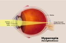 ipermetropia_optical_center